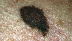 skin-brown-blotch